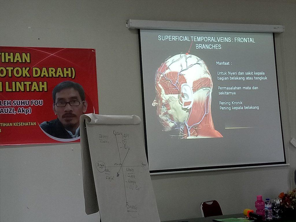 Saluran/Pembuluh darah vena di kepala (foto: mfaridwm)