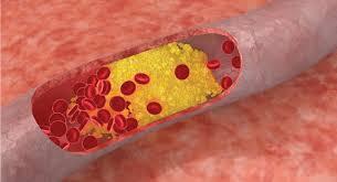 Kolesterol jahat. (foto: ist)