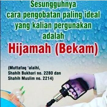 Sunnah Berbekam (foto: ist/palontaraq)