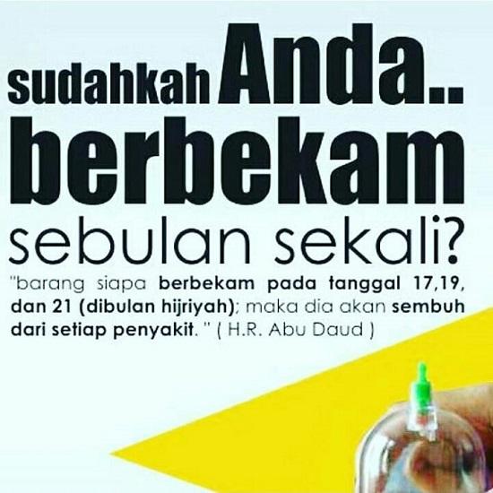 Sunnah Berbekam. (foto: ist/palontaraq)