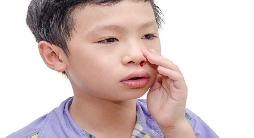 Perhatikanlah dengan baik cara mengatasi mimisan pada anak. (foto: alodokter)