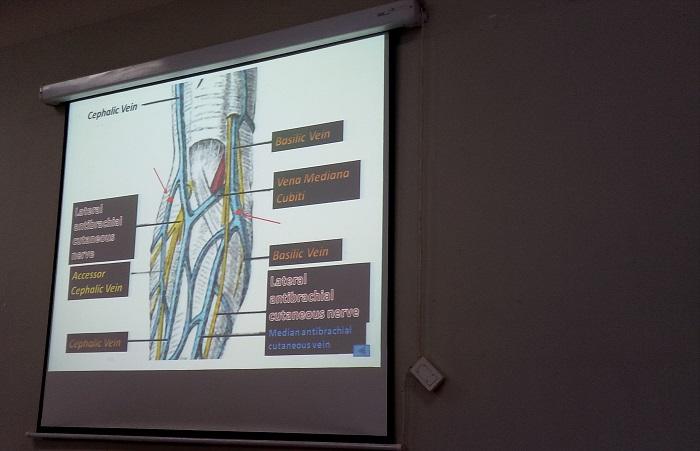 Titik Fashdu di lengan, harus cermat melihat pembuluh darah vena dan arteri. (foto: mfaridwm/palontaraq)