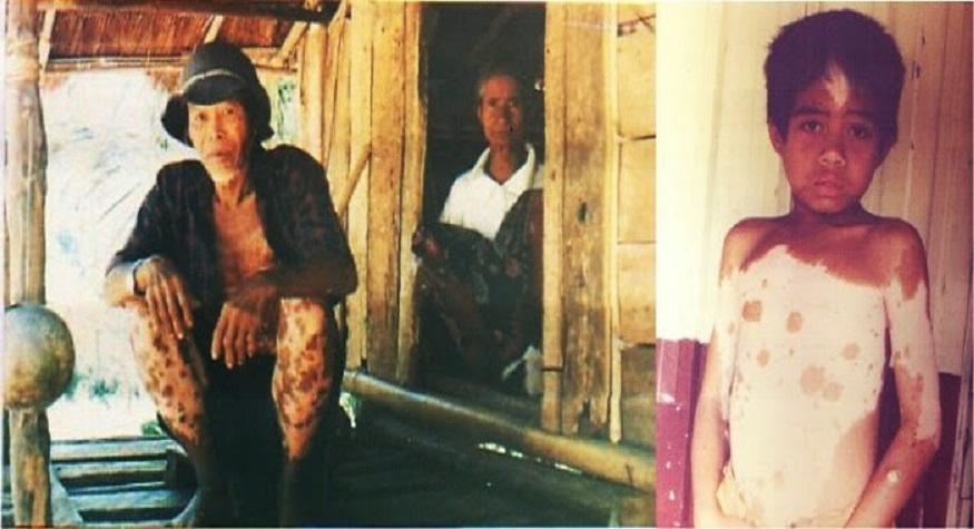Masyarkat Suku To Balo, Manusia Belang Di Pedalaman Barru