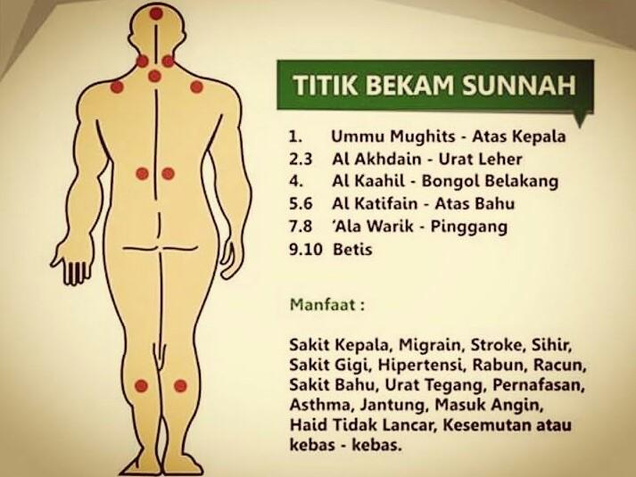 Titik Bekam Sunnah. (foto: ist/palontaraq)